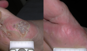Warts, dermatologist near me, how to get rid of warts, treatments for genital warts, how to get rid of warts on hand, how to get rid of warts on your hands, how to get rid of warts on toes, warts laser